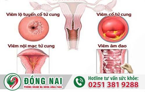 Những bệnh lý phụ khoa nữ giới thường mắc phải